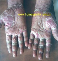 Psoriasis of palms, highly aggravated form of psoriasis of palms