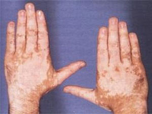 Vitiligo treatment by on of best homeopathic doctors in Lahore